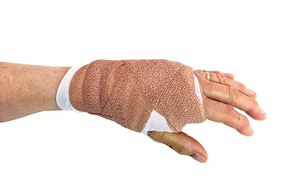 Bandaged female hand recovering from dog bite.